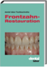 Frontzahn-Restauration